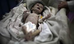 <!HS>시리아<!HE>의 비극 … 1개월 아기가 2㎏