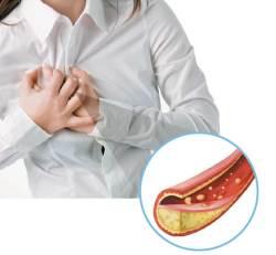 [<!HS>건강한<!HE> <!HS>가족<!HE>] 좋은 콜레스테롤↑ 나쁜 콜레스테롤↓ 폭염에 약한 혈관 보호