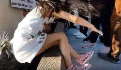 바다사자 습격당한 소녀, 박테리아 감염증 치료받아