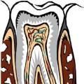 치아 신경치료 했는데또 이 씌워야하는 이유