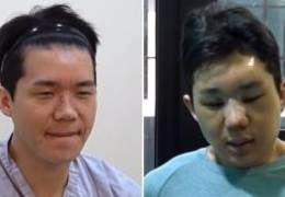 """'여혐 논란' 유튜버 보겸 """"새사람 되겠다""""··· 8시간 성형수술"""