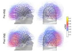 식물인간 15년 만에 머리 움직였다···세계는 뇌혁명 중