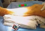 '포켓몬고' 증강현실 기술, 암수술에 세계 첫 활용