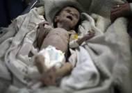시리아의 비극 … 1개월 아기가 2㎏