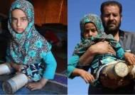 버려진 깡통으로 의족을…8살 시리아 난민 소녀의 꿈