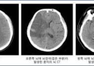 갑작스런 추위 심·뇌혈관 질환 주의보