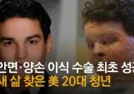 불에 녹은 얼굴·손 살렸다···美청년 기적 이룬 의료진 140명 [영상]