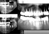 멀쩡한 치아까지 임플란트…450명, 과잉진료 피해 호소