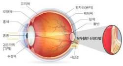 분지망막동맥폐쇄, 10명 중 3명은 시력손상