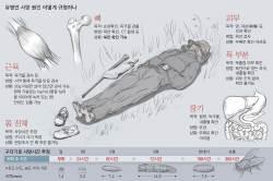 [<!HS>유병언<!HE> 사망] 뼈가 핵심 단서 … 근육 20g 있으면 독극물 검출 가능