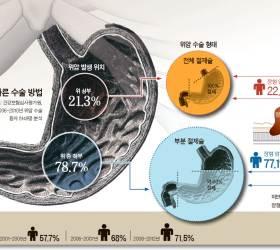 [<!HS>건강한<!HE> <!HS>목요일<!HE>] 위 다 들어낸 위암 1기, 부분절제한 3기 … 차이는 암 위치