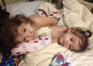 사망 확률 30% '힘든 수술' 앞둔 샴 쌍둥이 자매