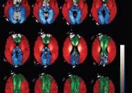 뇌경색, 어디서 발생하나...국내 연구진 '고해상도 뇌혈류지도' 그리다