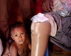 [채인택의 글로벌 줌업] 치료비 70원, 소들이 어슬렁…로힝야 난민촌의 응급실