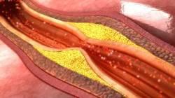 심근경색 등 혈관질환 잡는 인공혈관, '소리'로 만들어지다