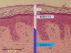 피부 노화 방지한다는 콜라겐, 돼지껍질 먹는다고 도움 안돼