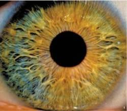 질병 알려주고 각막 치료까지하는 기능성 렌즈 특허가 뜬다