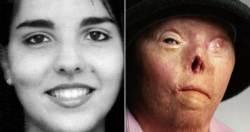 음주운전 추방운동 상징 '얼굴없는 여성' 40세 사망