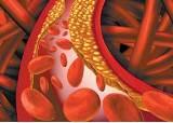 [건강한 가족] <!HS>치매<!HE> 위험 높은 흡연자의 콜레스테롤 관리 도와준다