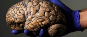 '늙으면서 생기는 뇌 세포 돌연변이가 치매 일으킨다'
