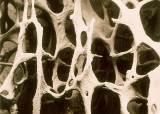 뼈에 구멍이 숭숭...위암 환자가 주의해야 할 뜻밖의 후유증