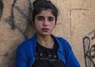 또 아이들…터키 공격에 12세 소년 숨지고 여동생은 다리 절단