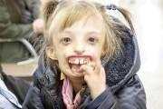 엄마는 아기를 보고 기절했다···턱없이 태어난 소녀의 기적
