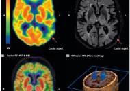 다 같은 치매가 아니다, 알츠하이머 환자 머릿속 3가지 유형