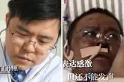 코로나 감염후 얼굴 시커멓게 변한 의사…뇌출혈로 생명 위독