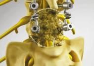 [비즈스토리] 진단 어려운 '척추 유착성 질환'… 추간공확장술로 통증 치료하세요