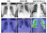 "KAIST ""정확도 높인 코로나19 영상 AI 진단 기술 개발"""