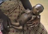 생후 1개월에 1.2㎏…코로나에 매달 1만명씩 굶어 죽는다