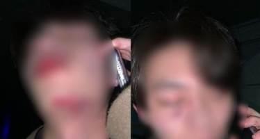 """""""목격자 찾습니다"""" 골목길에서 '묻지 마' 폭행당한 20대 남성"""