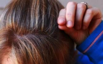 [더오래]엄마 머리 가운데가 '텅'…탈모 치료 양치하듯이