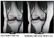 [김영호 원장의 관절이야기] 봄 환절기 '무릎 반월상연골판 손상'주의보