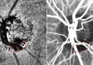 녹내장 원인 '시신경 혈류 저하', 비침습적 검사법 통해 정확히 관찰