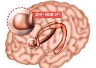 수술로 뇌 일부 절제해도 정상 기억력 유지 가능