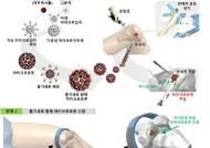 MRC, 줄기세포 탑재한 마이크로로봇으로 무릎연골재생 첫 성공