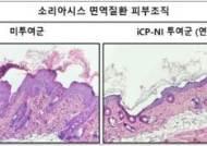 셀리버리, JP모건 컨퍼런스서 항염증신약 'iCP-NI' 자가면역질환 소리아시스 치료효능 발표