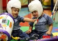 머리 정수리 붙은 쌍둥이형제, 분리수술후 10년째 생존…한 명은 장애 남아