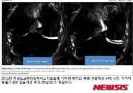 퇴행성관절염 연골재생 첨단 치료법, 알고보니 한국산