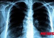 결핵, 에이즈 제치고 가장 많은 사망자 부르는 감염병 1위