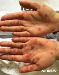 일본서 수족구병 대유행···1주일간 환자 2만명 훨씬 넘어