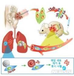 줄기세포-나노약물 결합해 부작용 줄인 폐암 치료물질 개발