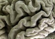 알츠하이머 신약 'BAN-2401'효능 발휘, 치료에 새 희망