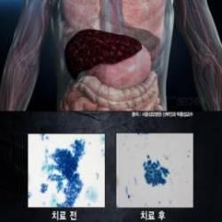 '생로병사의 비밀' 간경화-간암 원인 C형 간염...감염경로와 치료법은?
