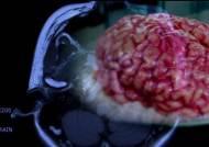 뇌질환 정복 눈 앞…뇌지도가 가져올 미래 의료계 주목