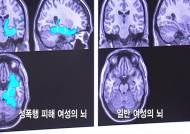 성폭행 피해 여성들 검사해보니…뇌까지 '파괴' 충격