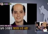 '장동건도 예외는 없다'…대머리 굴욕 사진 '지못미'