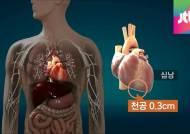 장 수술 받은 신해철, 왜 심장막에 구멍이 생겼을까?